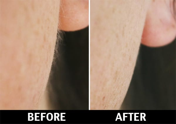 vellus-hair-peach-fuzz-hair-removal-NYC
