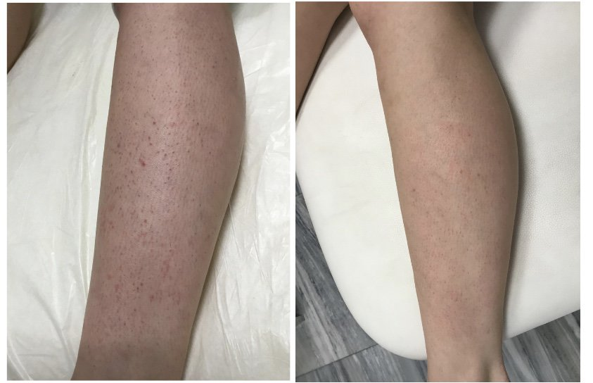 How Laser Hair Removal Helped My Ingrown Hair Honest Review